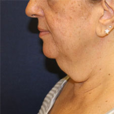 Neck Lift Before Patient 4