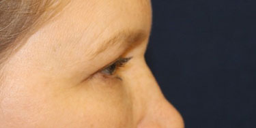 Eyelid After Profile Patient 2