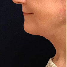 Neck Lift After Patient 5