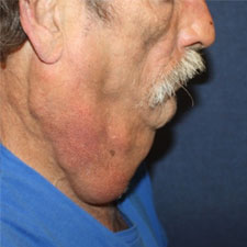 Neck Lift Before Profile Patient 2