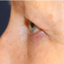 Eyelid Before Profile Patient 1