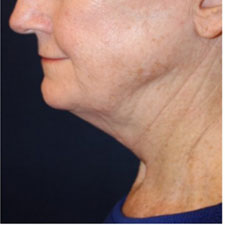Neck Lift Before Patient 5
