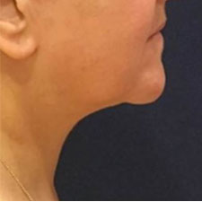 Neck Lift After Patient 1
