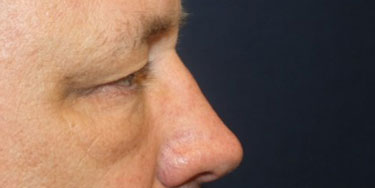 Eyelid Before Profile Patient 3